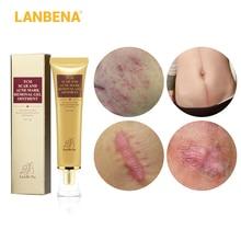 LANBENA 30ml Acne Scar Stretch Marks Remover Cream Skin Repair Face Spots Treatment Blackhead Whitening