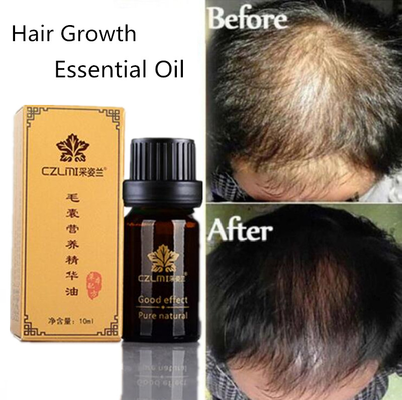 Natural Hair Growth Ginger Oil No Side Effects Plant Essence Faster Grow Hair Tonic Toppies Shampoo No Hair Loss Hair Care Tools