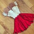 2XL 2017 Новый Плюс Размер Спинки Кружева Dress Short Sleeve шить платья для Торжеств и Вечеринок Мини Sexy Women Summer Vestidos Де феста