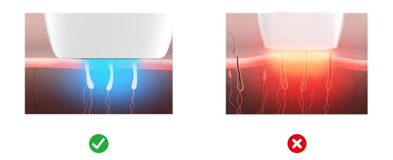 ipl-laser-Epilator-T013C (5)