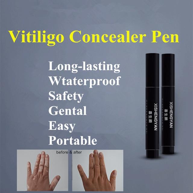 El Vitiligo Leukoderma que pluma corrector resistente al agua planta esencia líquido para el cuerpo cara oculta color parches para la piel maquillaje