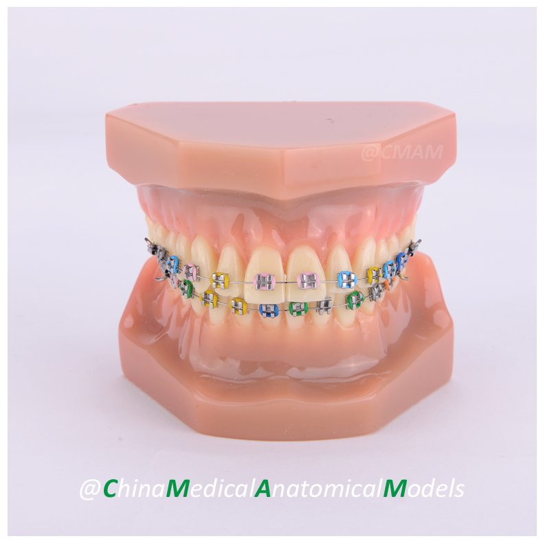 13039 DH206-1 Orthodontic Model, Dentist Patient Communication Oral Dental Ortho Metal Model, China Medical Anatomical Model 13033 dh204 3 ortho ceramic bracket dentist training oral dental ortho ceramic bracket model china medical anatomical model