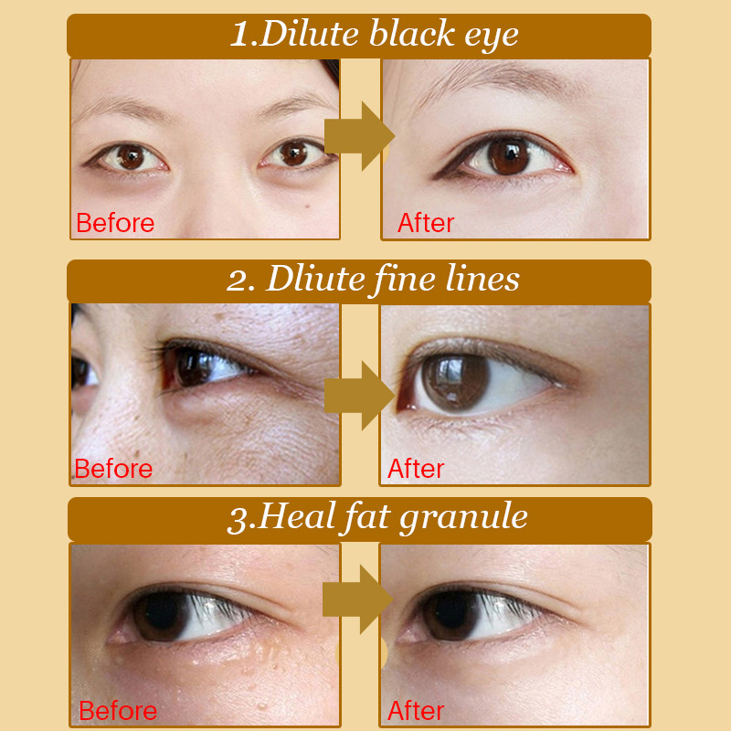 20Pcs / Set Deck Out žene Crystal očni kapak Patch protiv bora - Briga o koži - Foto 5