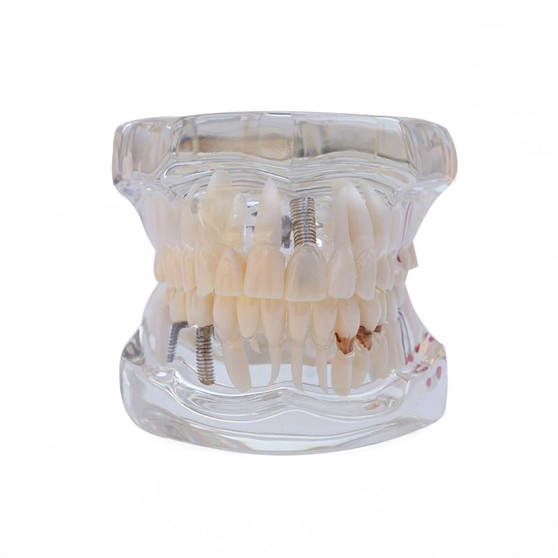 1PC Οδοντικό εμφύτευμα μοσχεύματος - Στοματική υγιεινή - Φωτογραφία 3