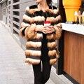YNZZU Люкс Искусственного Меха Пальто Раздели С Длинным Рукавом Женский Лохматый куртка Лиса Шубы Зимой Теплый Мех Fourrure Женские Ветровки YO131