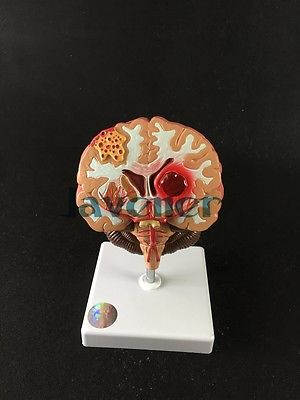 Human Anatomical Disease of the Brain Anatomy Medical Model Professional 4d anatomical human brain model anatomy medical teaching tool toy statues sculptures medical school use 7 2 6 10cm