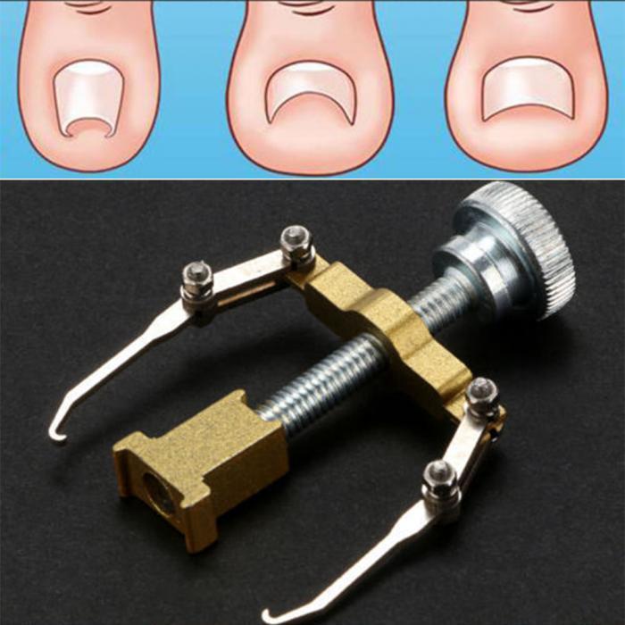 Señora suministros ortopédicos pedicura profesional herramienta ...