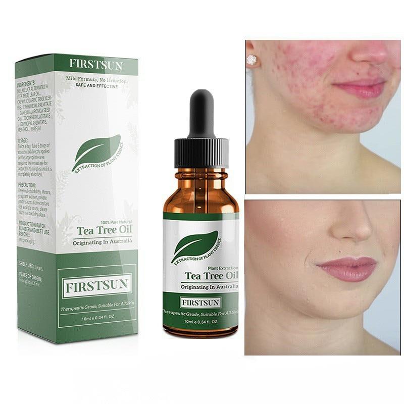 100% Tea Tree Pure Essential Oil Face Care Skin Acne Treatment Oil Blackhead Remover Anti Scar Spots Facial
