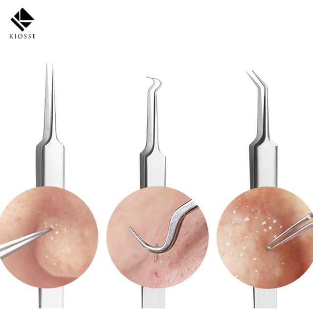 Newest Acne Needle Tweezers Black Head Pimples Removal Pointed Bend Gib Head Face Care Tools Blackhead Acne Extractor A050 B052