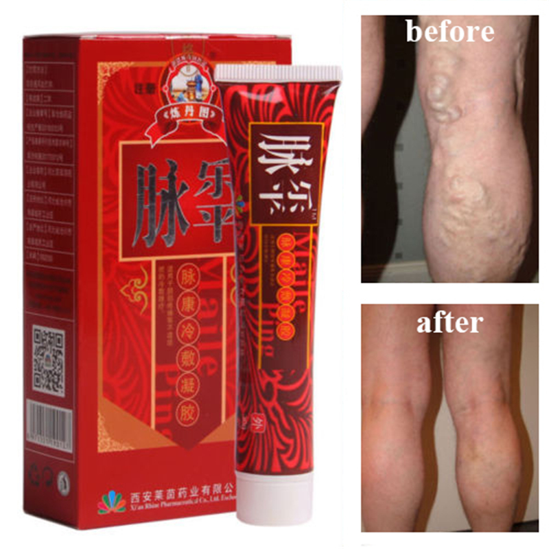 Varicose Veins Cream Herbal Treatment Ointment Removal Vasculitis Phlebitis Spider Veins Pain Varicosity Angiitis Remedy