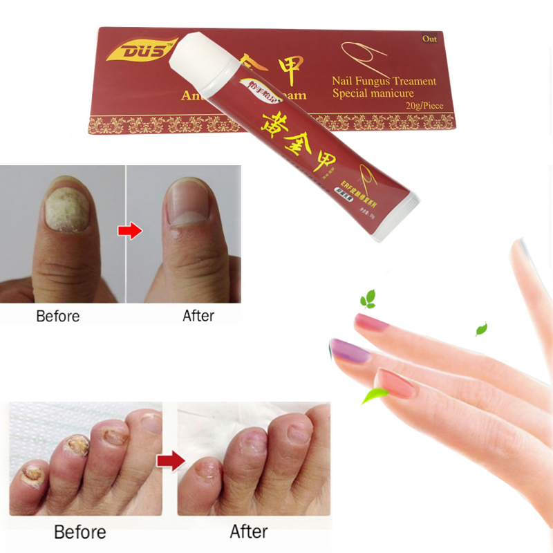 nail-fungus-treatment-ointment-treatment-toe-nail-onychomycosis-paronychia-anti-fungal-nail-infection-wholesale