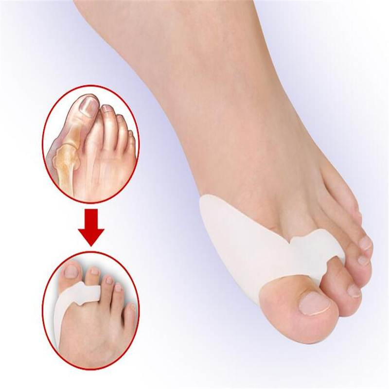 2pcs/Lot Silicon GEL Genuine Hallux ValgusBicyclic Thumb Orthopedic Braces Bent Toes Corrector Foot Care Tool Pain Relief CKaN(China)