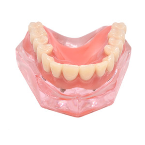 Image 2 - 歯科インプラント歯モデルリムーバブルインテリアデザイン下顎下の歯モデルのためのインプラントで下顎歯教育研究