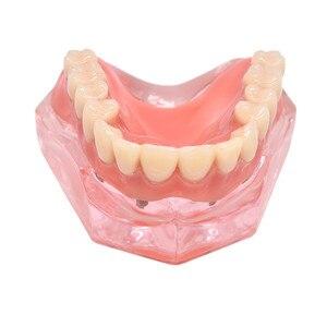 Image 2 - Dental Overdenture ฟันรุ่นที่ถอดออกได้ภายใน Mandibular ล่างฟันรุ่น Mandibular พร้อม Implant สำหรับฟันการสอนการศึกษา