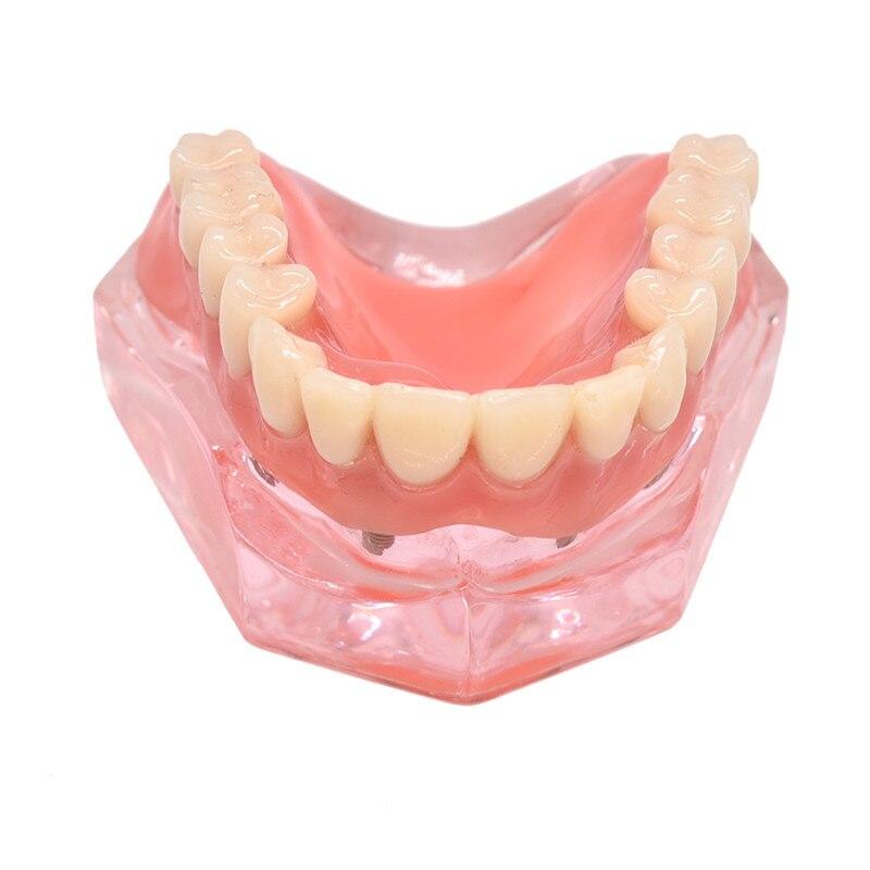 mandibulares com implante de dente removivel interior mandibular inferior estudo 02