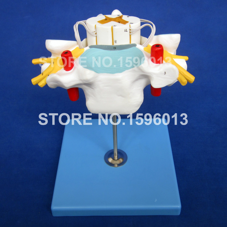 HOT Anatomical Cervical Spine Model,Cervical Vertebra with Spinal Cord and Nerves ModelHOT Anatomical Cervical Spine Model,Cervical Vertebra with Spinal Cord and Nerves Model
