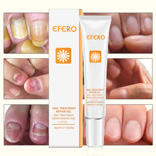 EFERO Nail Repair Essence Serum Fungal Treatment Remove Onychomycosis Hands and Feet Care of Toe Nourishing Whitening