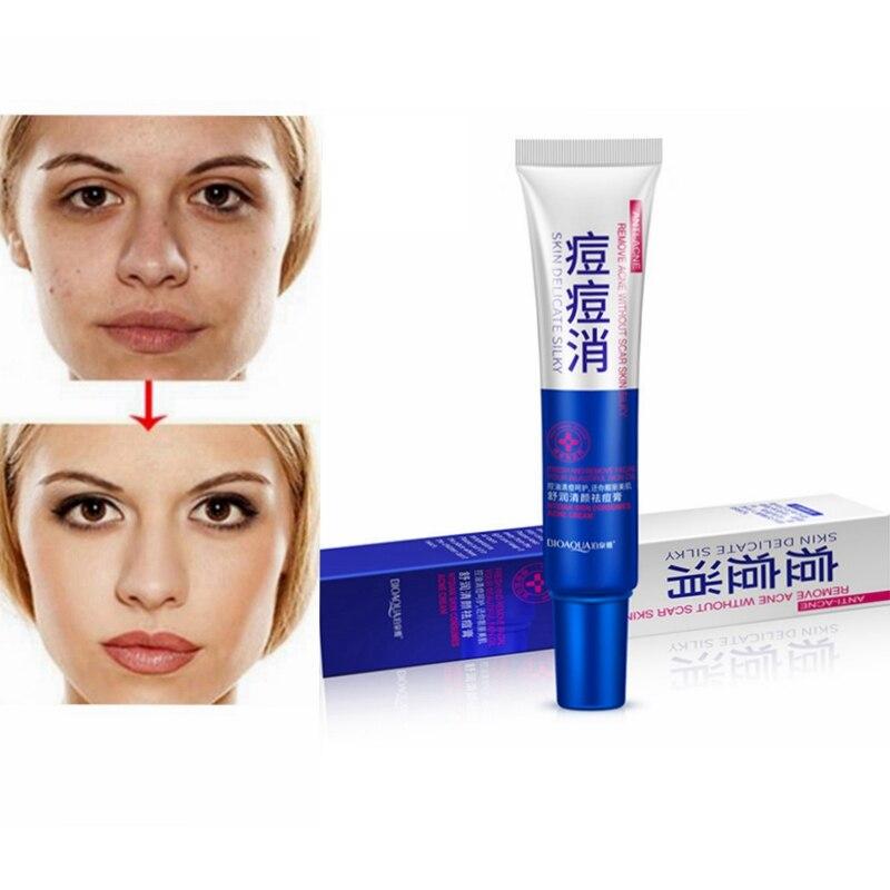 Bioaqua beauty chinese face whitening cream pomada cicatrizante acne scar removal creams anti aging acne treatment yiganerjing tatuajes para tapar manchas blanca de nacimiento