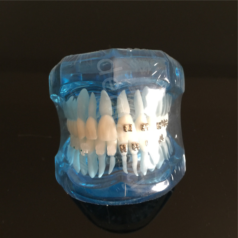 Dental Orthodontics Communication Model With 4 Types of Brackets Teeth Model Blue цены