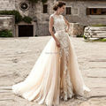New Champagne Detachable Skirt Wedding Dress Two Piece Lace Elegant Bridal Gown Bride robe mariage Mermaid Style Hochzeit