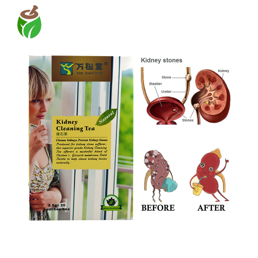 40 pcs/2 Packs Kidney Stones Cleaning Drink Tea Chinese medicine Kidney Care treatment Excreting kidney toxins cleaning product Пенал