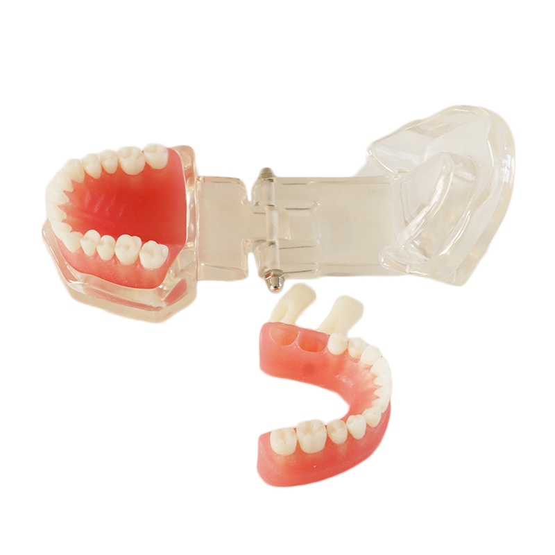 Denture Dental Teaching model Dental Removable Model 28 tooth Without screw dental root canal filling practice model dental pulp model teaching model