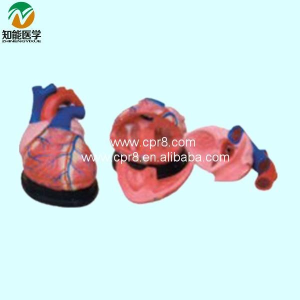 Big Heart Anatomy Model 4 Times BIX-A1055 WBW236 heart anatomy viscera medical model model of cardiac cardiac anatomy human heart heart medium demo model 6 gasen rzjp006