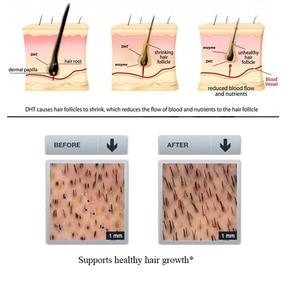 Image 4 - PURC offre spéciale épaississement shampooing croissance des cheveux essence huile ensemble traitement de perte de cheveux soutient la croissance des cheveux en bonne santé ensemble de soins capillaires