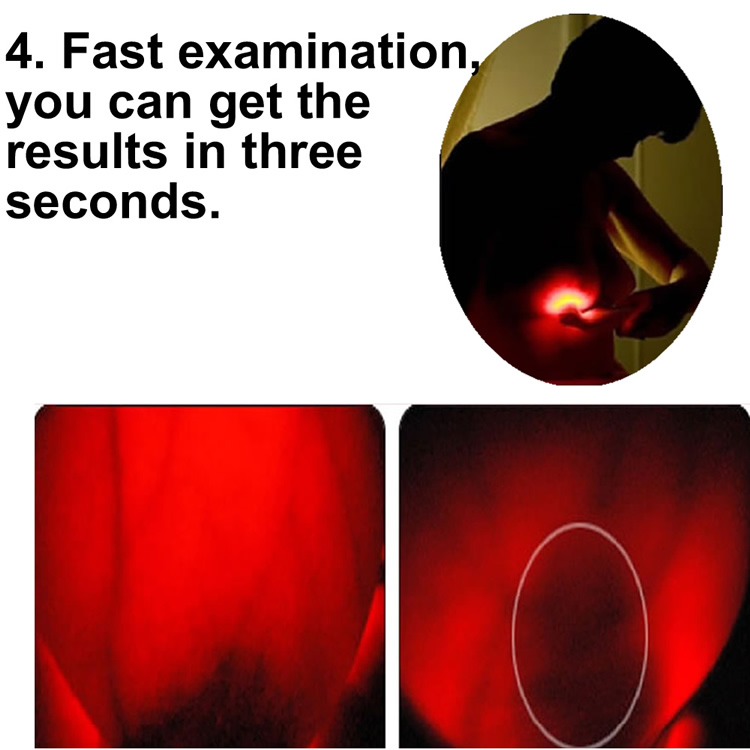 Breast light scanner  test for breast cancer and other abnormal symptoms  for women home use abnormal psychology 4e
