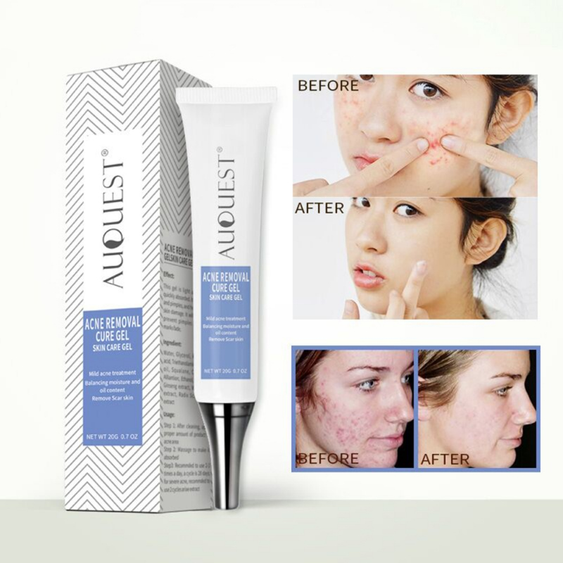 Natural Ingredients Pimple Remover Cream Inhibit Pimple Growth Remove Pimple Marks Blackhe