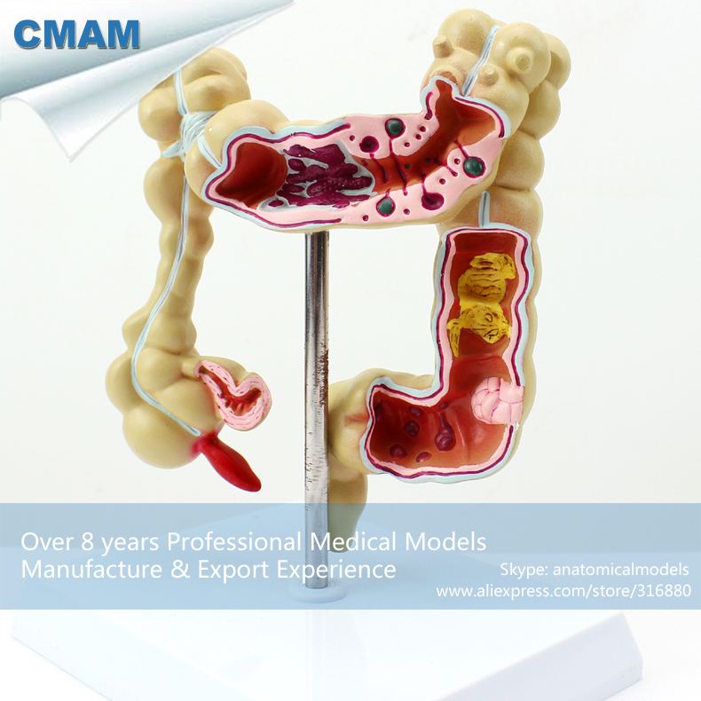 12533 CMAM-INTESTINE01 Medical Science Anatomical Intestines Model 12461 cmam anatomy23 breast cancer cross section training manikin model medical science educational teaching anatomical models
