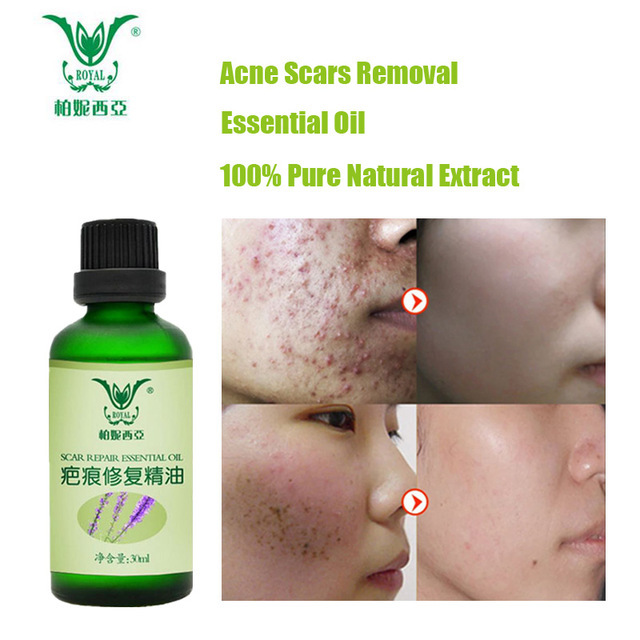 Beauty Skin Care Elamour Lavender Essential Oil Scar Repair Ointment Remove Scar Acne Freckle Stretch Marks Removal Surgery Scar