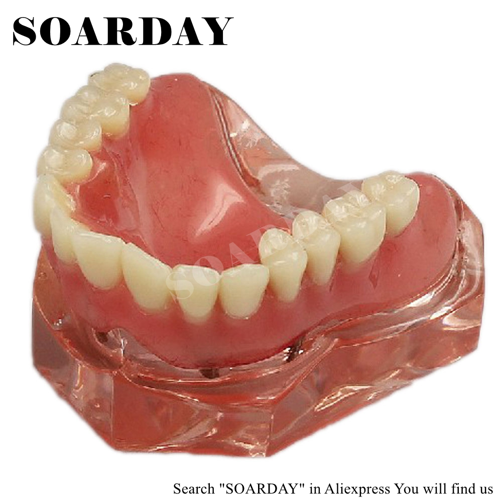 SOARDAY Overdenture inferior with 4 implants dental for teaching tooth teeth dentist dentistry odontologia soarday dental restoration model with 4 implants overdenture inferior teaching study teeth model