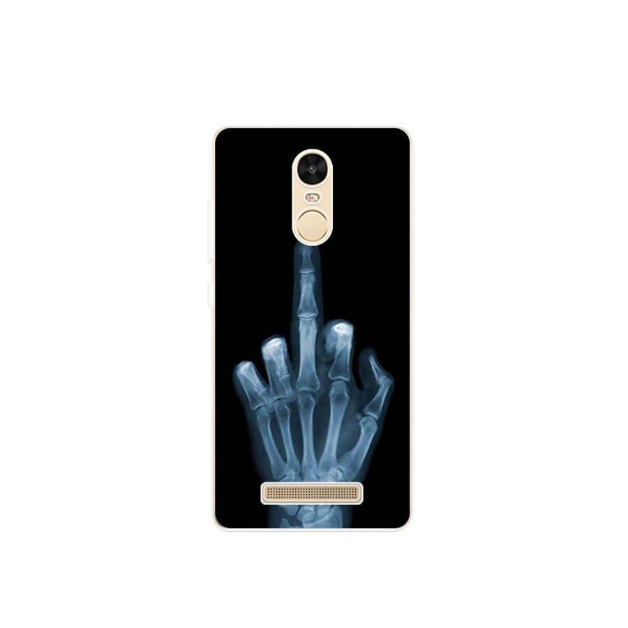 Abdeckung für Xiaomi Redmi Hinweis 3 Pro SE Prime Telefon Fall Abdeckung Special Edition Weiche TPU für Xiaomi Redmi Hinweis 3 Pro Fall 152mm