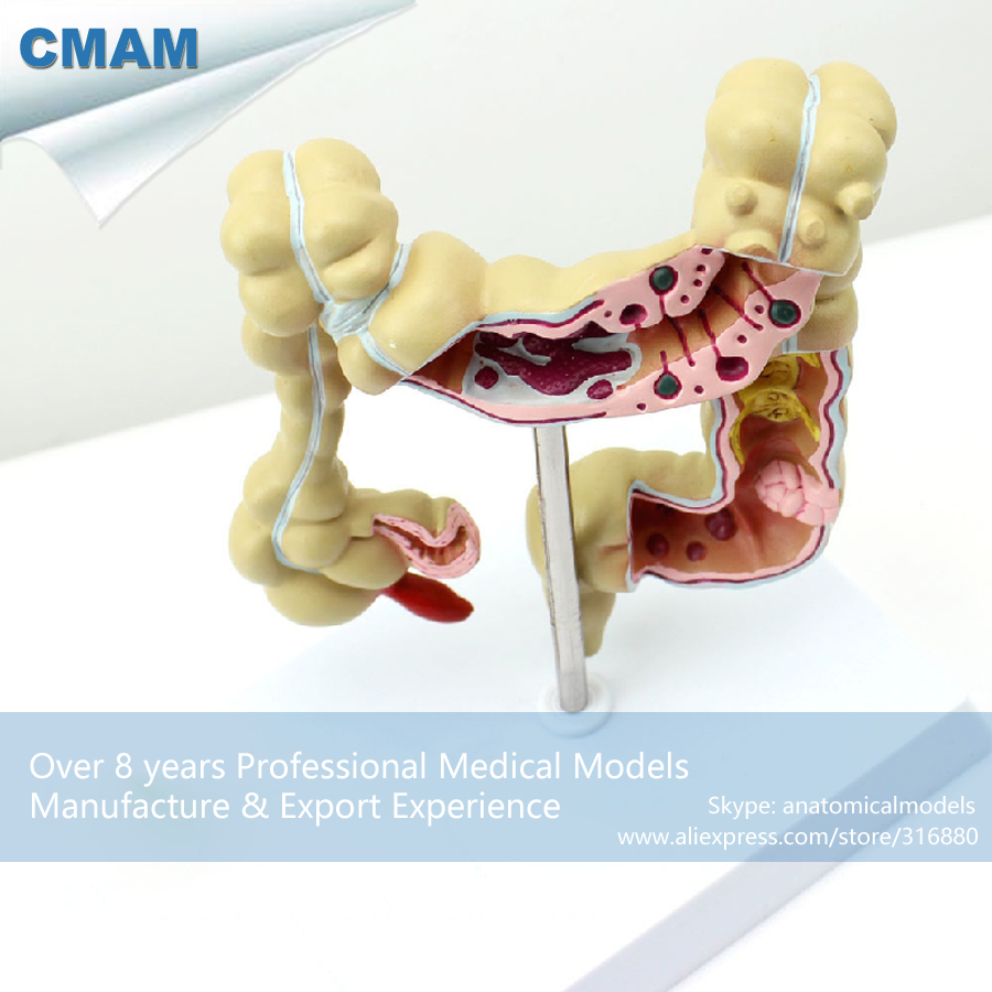 12533 CMAM-INTESTINE01 Colon Model Large Intestines Anatomy Model on Stand, Medical Science Educational Anatomical Models cmam a29 clinical anatomy model of cat medical science educational teaching anatomical models