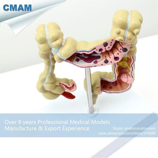 12533 Modelo De Colon Intestino grueso CMAM INTESTINE01 Anatomía ...