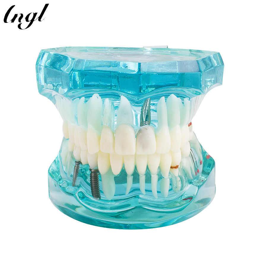 1 szt. Dorosły Model żywicy dentystycznej Model zębów Model dentystyczny narzędzia laboratorium dentystyczne przezroczysty Model