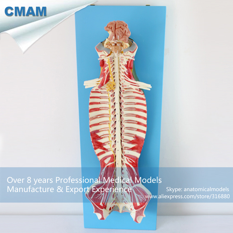 12311 CMAM MUSCLE17 Human Spinal Cord in the Spinal Canal Anatomy ...