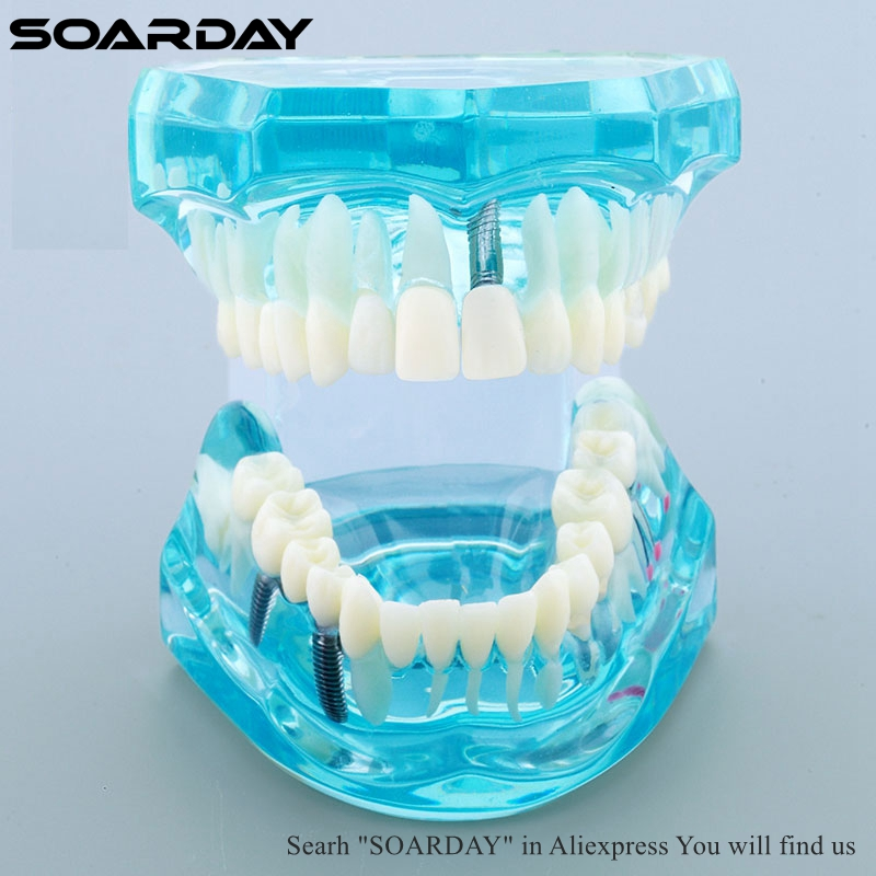 SOARDAY 1pc Dental Comprehensive Teaching Model Tooth Disease and Prosthodontics different viewpoints in prosthodontics and implantology
