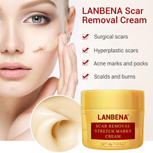 Hot sale Acne Scar Removal Stretch Mark Cream Repair Moisturizing Skin Care for Women