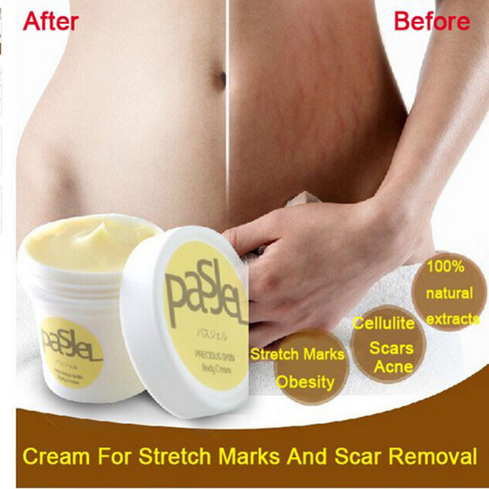 Thailand Maternity Cream Wrinkle Precious Body Cream Eliminate Stretch Marks Remover Scar Obesity Pregnancy Cream for Women