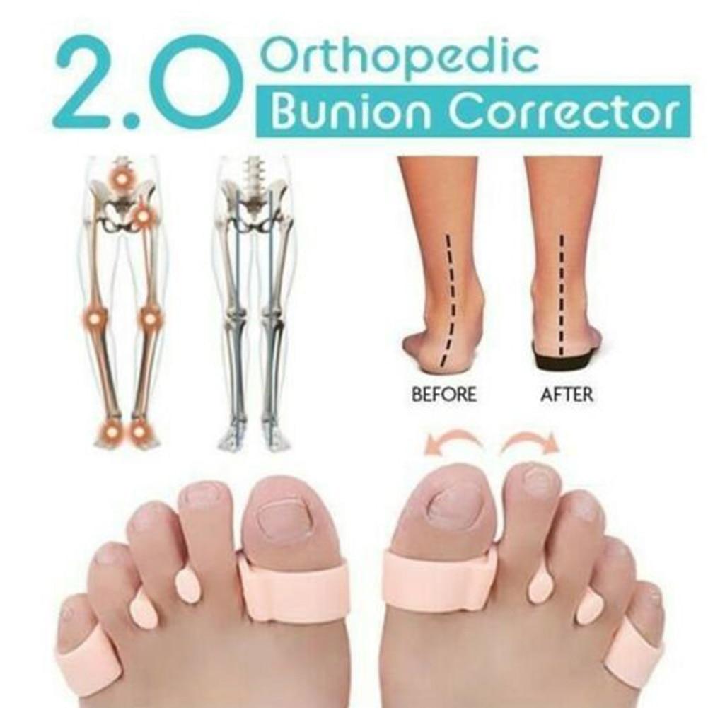 Регулировщик ноги кости носок для ухода за кожей стоп вальгусной с бантом на ноги педикюр ортопедический Bunion Корректор ног разделитель PU большого пальца Корректирующее приспособление для стоп