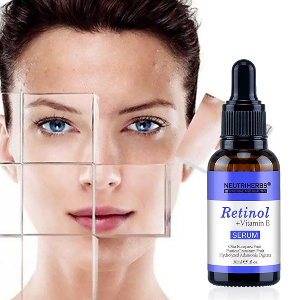 Image 3 - Neutriherbs Face Retinol Serum Vitamin E  2.5% Vitamins A Anti Acne Serum Anti Aging/Wrinkle Skin Lightening Serum Facial 30ml-in Serum from Beauty & Health