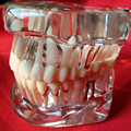 Study teeth model dental activity pathological model teeth can be removable