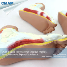 CMAM-MUSCLE10 Medical Anatomy Human Foot Normal, Flat, Arched Foot Model