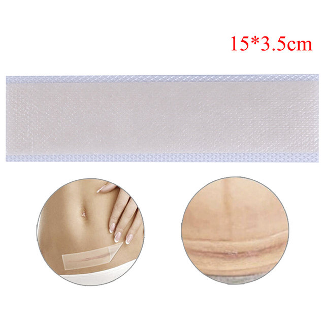 Silicone Scar Removal Patch Remove Trauma Burn Scar Sheet Skin Repair Scar Removal Therapy Patch for Acne Scar Treatment 5
