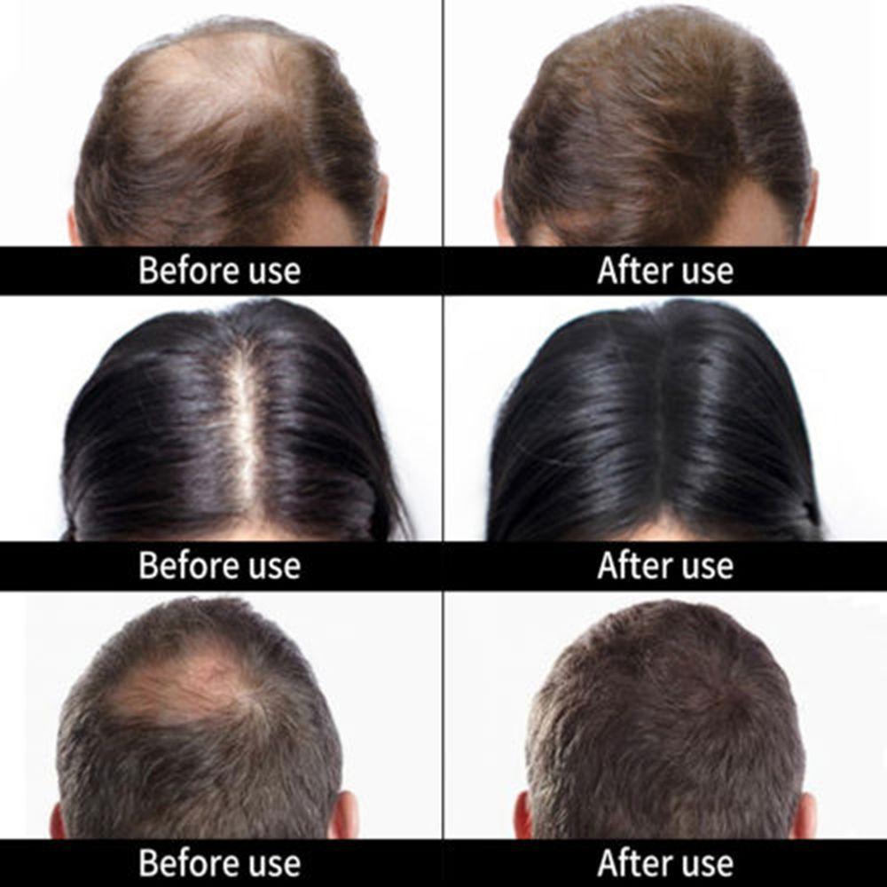 Hair Loss Concealer Hair Growth Fiber Keratin Hair Building