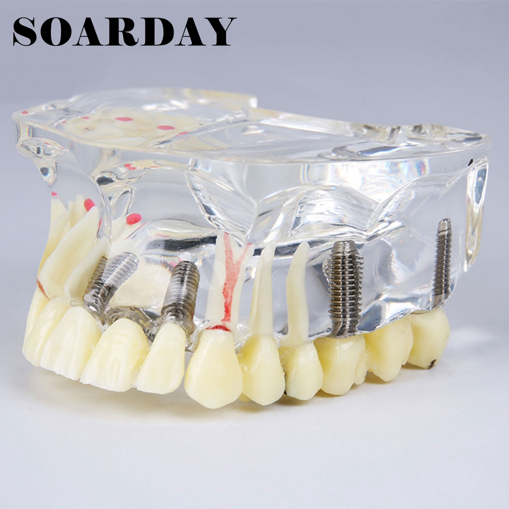 Dental Implant Model for Bridge and Caries Teeth Removable dental pathology model anatomical model teeth model dental caries periodontal disease demonstration model gasen den050