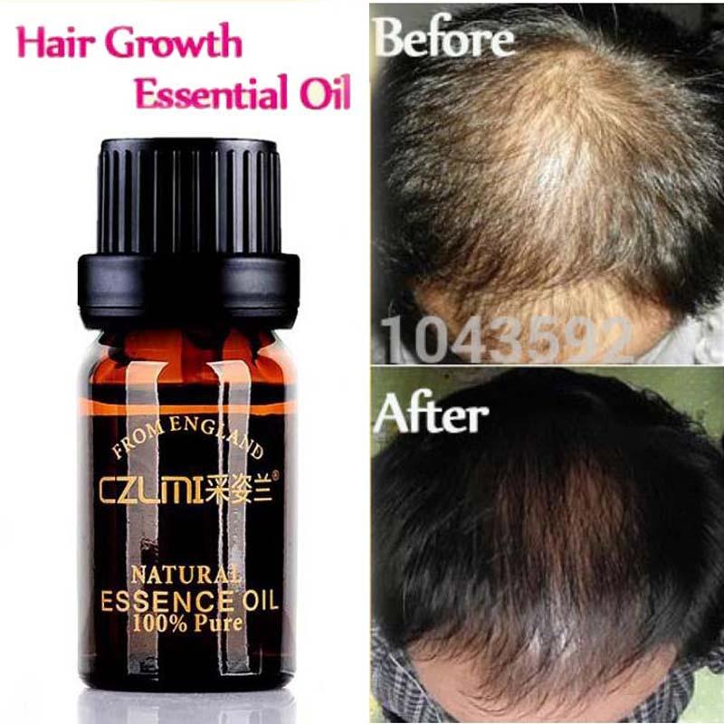 hair loss products natural