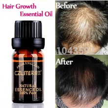 Hårpleie CZLMI Hair Growth Faster Essential Oil 10ml Tett Pilatory Fast Behandlingsprodukter Hair Building Oil Hair Growth 10ML